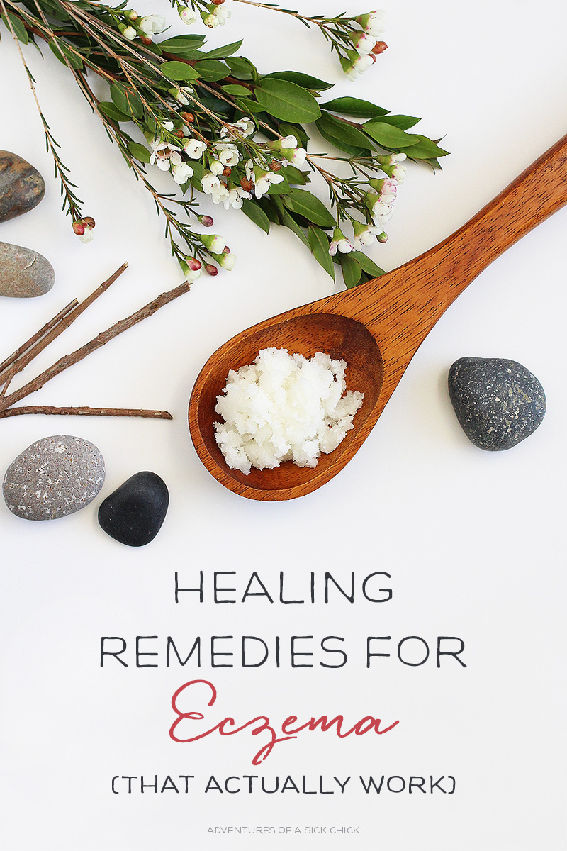 Healing Remedies for Eczema That Actually Work